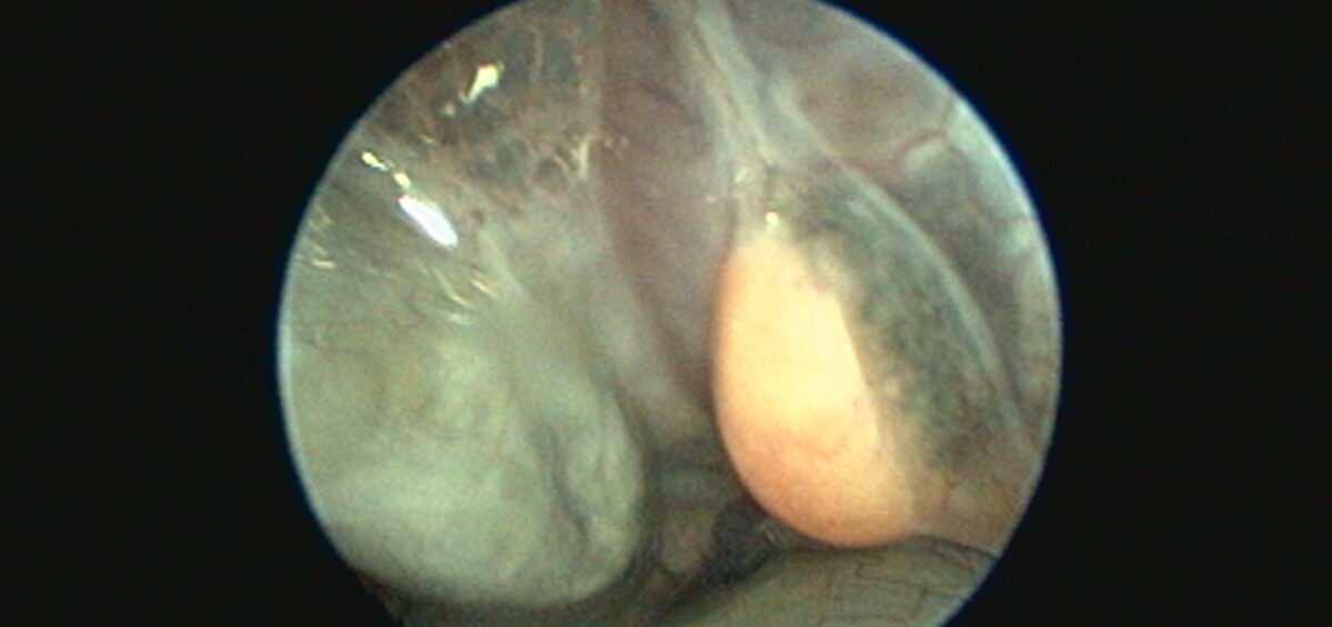 Endoskopie männlich